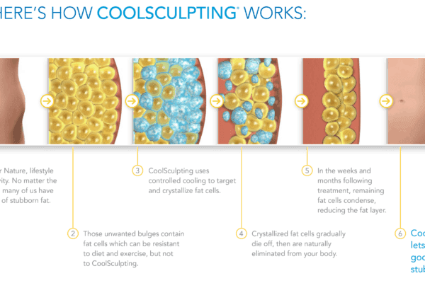 How-Coolsculpting-Works